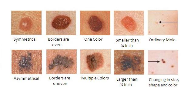 Bőrrák tünetei, okai, jelei, megelőzése, kezelése, gyógyítása